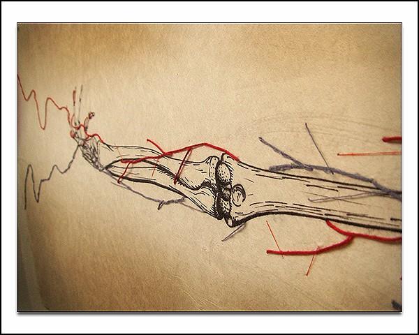 Systems, медицинский арт-проект Дэна Бэкмейера