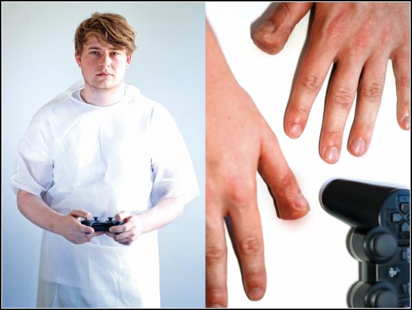 К чему приводит компьютерная игромания. Случай *Деформирование пальцев от PlayStation*