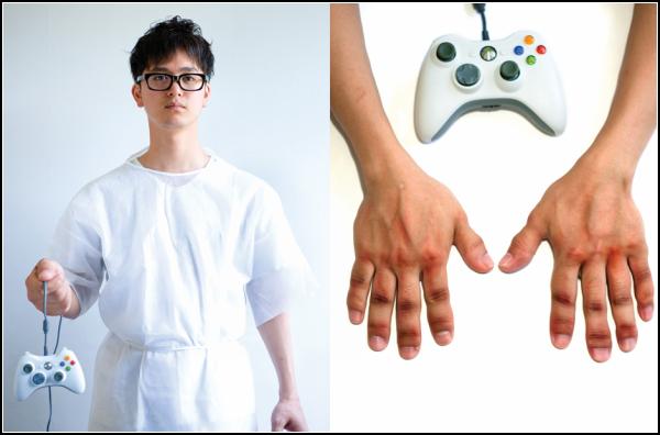 К чему приводит компьютерная игромания. Случай *Xbox-гипертрофия*