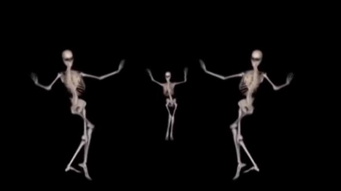 Восточные танцы глазами рентгенолога
