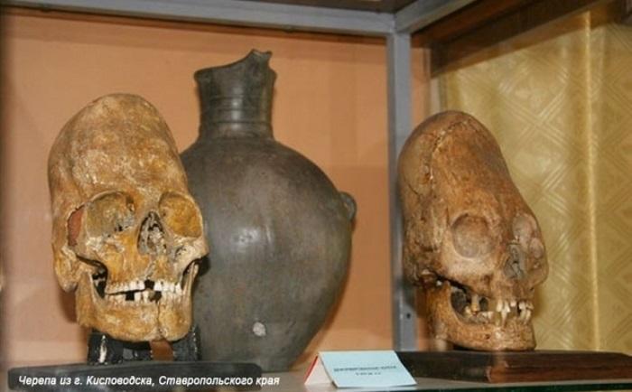 Деформированные черепа, найденные в Ставропольском крае