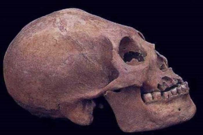 Деформированный череп