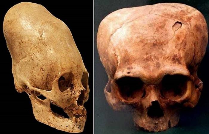 Разные способы деформации черепа