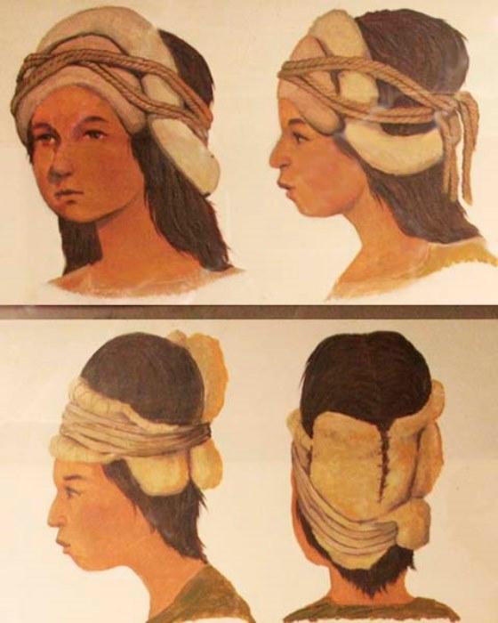 Стягивающие повязки для деформации головы