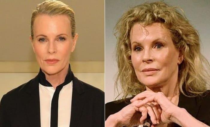 Актриса до и после пластики | Фото: 24smi.org