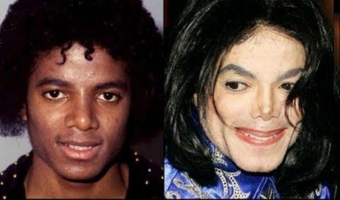 Майкл Джексон на заре своей музыкальной карьеры и на пике популярности | Фото: uznayvse.ru