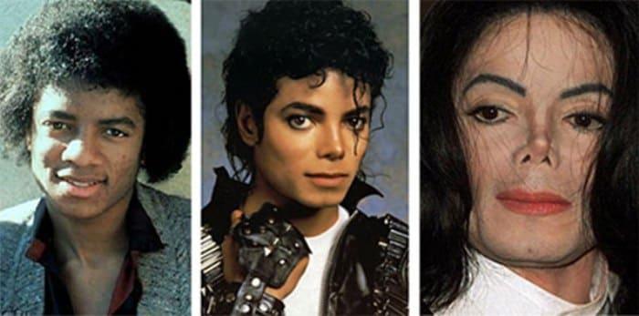 Так внешность Майкла Джексона менялась с годами | Фото: sfw.so