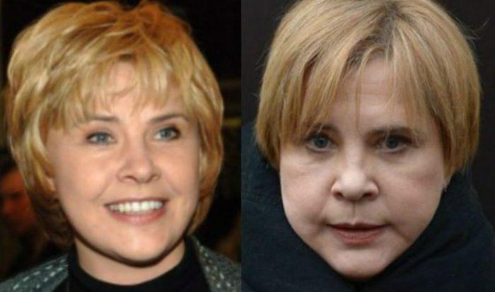 После пластической операции Татьяна Догилева сильно изменилась | Фото: uznayvse.ru