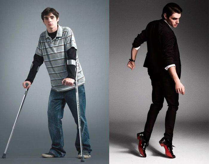 Американский актер, который стал звездой, несмотря на инвалидность | Фото: vo-vse-tyazhkie.com
