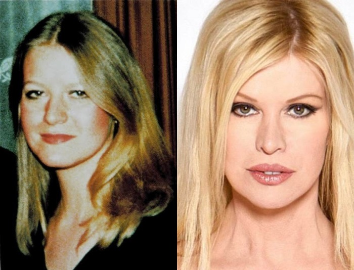 Синди Джексон до и после операций
