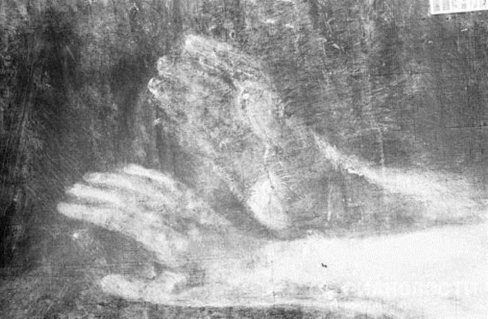 Рентгеновский снимок руки Данаи: на рентгенограмме две поднятые руки
