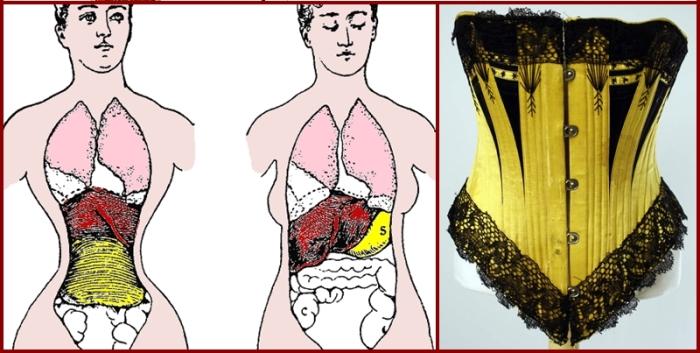 Корсеты, деформирующие внутренние органы