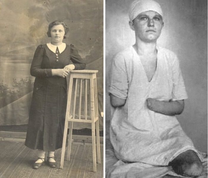Зина Туснолобова до и после ранения   Фото: westki.info