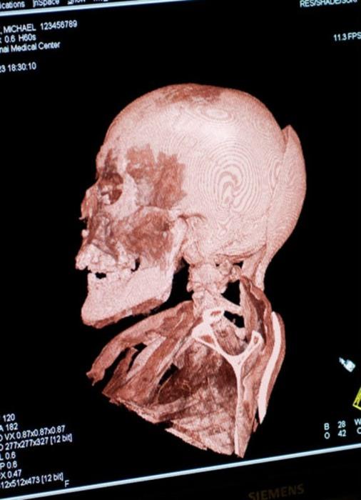Снимок компьютерной томографии черепа Михаила Орловица.