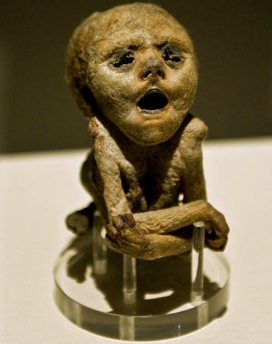 Мумия человеческого зародыша, умершего на 30-ой неделе развития от редкого дефекта позвоночника.