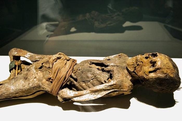Мумия женщины 30-50 лет, страдавшая туберкулезом настолько сильно, что ей парализовало ноги.