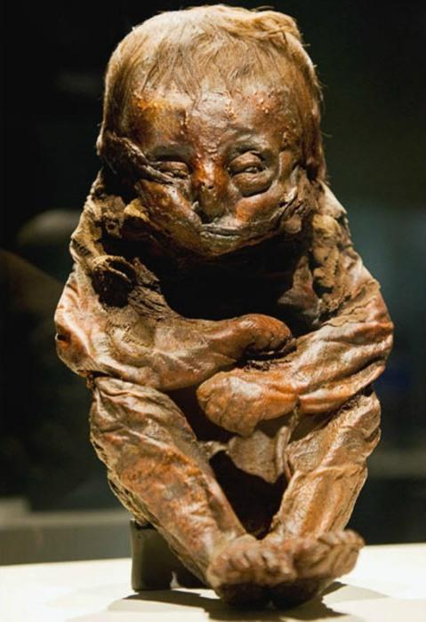 Мумия перуанского 8-10-месячного ребенка, скончавшегося 6500 лет назад, скорее всего, от болезни сердца.