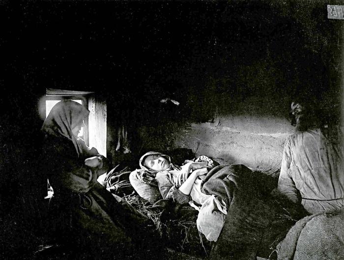Ребенок больной сыпным тифом в городе Княгинин.