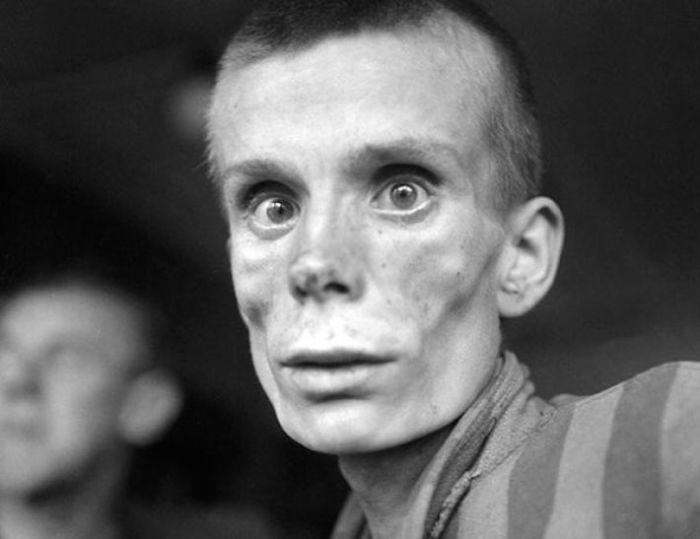 Истощенный пленник в день освобождения лагеря «Дахау».