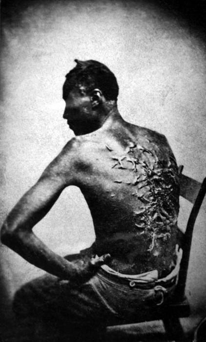 Бывший раб показывает свои шрамы от битья. США, штат Луизиана, 1863 год.