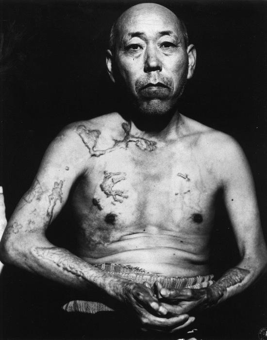 Житель Хиросимы Теравама, переживший атомную бомбардировку, июнь 1945 года.