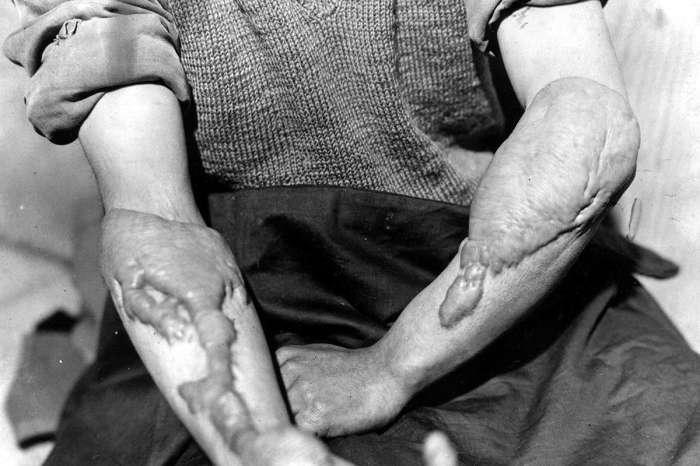 Жертвы последствий атомной бомбардировки из числа представителей мирного населения.