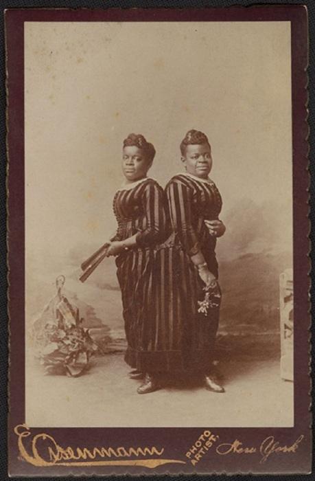 Портрет сиамских близнецов Милли и Кристины.