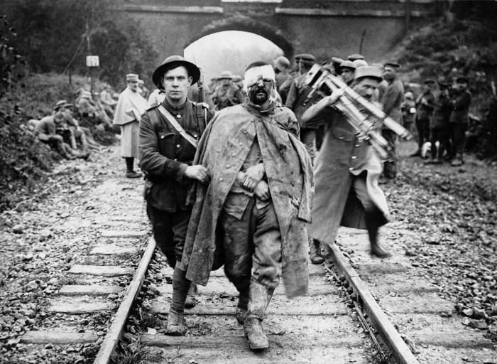 Раненый и грязный немецкий военнопленный.