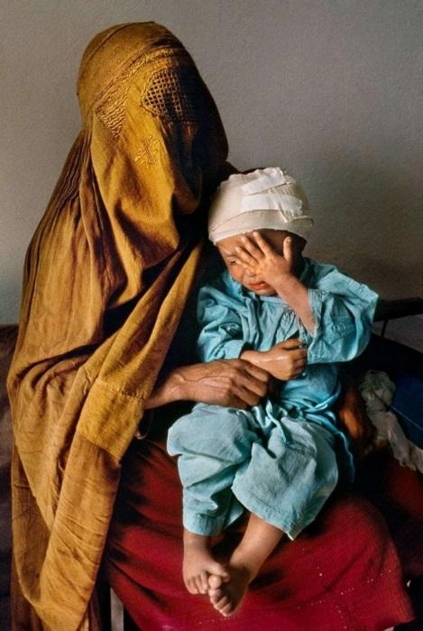 Женщина с сыном, который получил осколочные ранения. Афганистан, 1992 год.