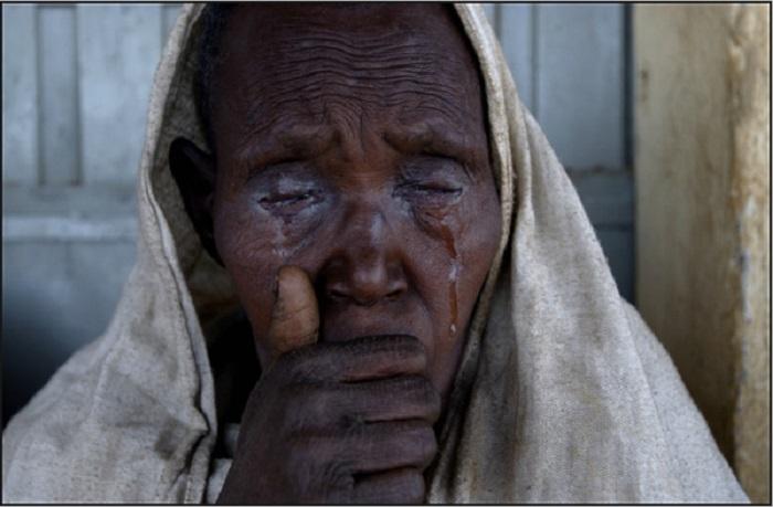 Пациент с трахомой. Эфиопия, 2005 год.