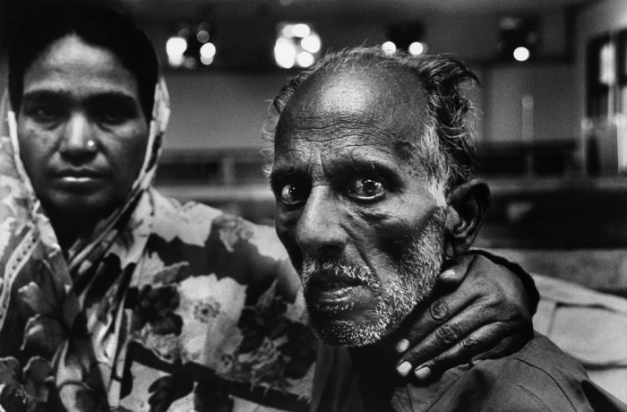 Местные жители, которые пережили Бхопальскую  катастрофу. Бхопал, 2002 год.