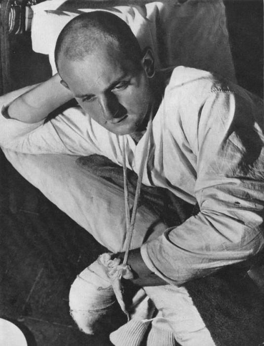 Немецкий военнопленный, которого лечили в одном из московских госпиталей.