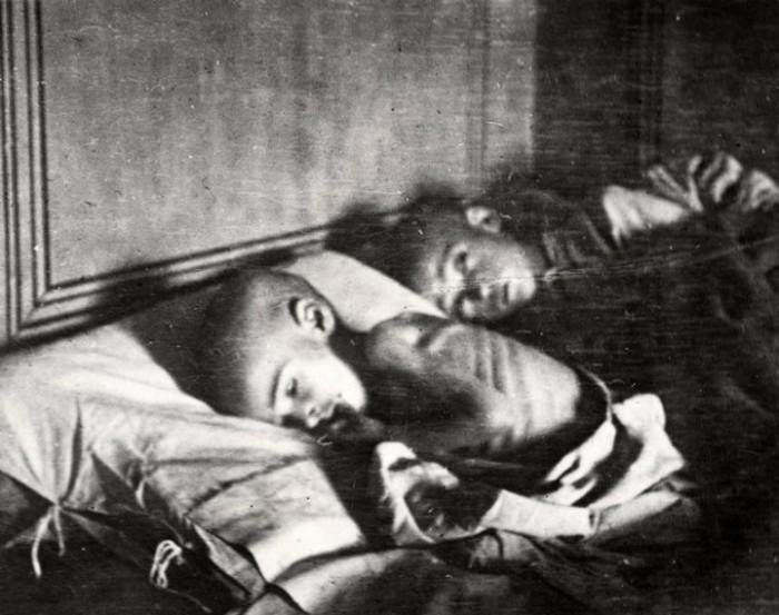 Тяжёлые последствия длительного голода. Россия, Поволжье, 1921 год.