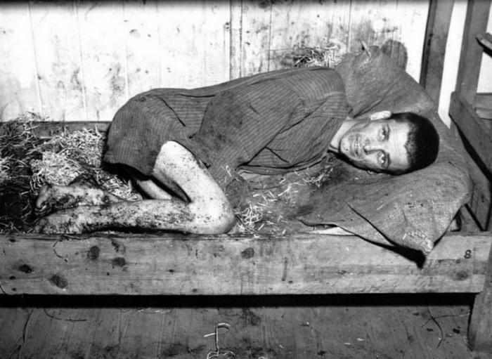 Страшные кадры Второй мировой войны.