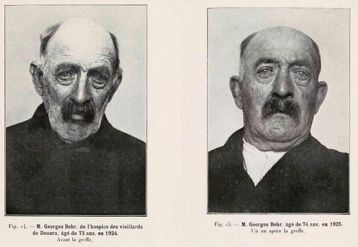 Другой пациент до и после омоложения Воронова. Фото: commons.wikimedia.org.