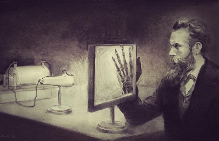 Вильгельм Рентген просвечивает руку. | Фото: araceliregolodos.blogspot.com.