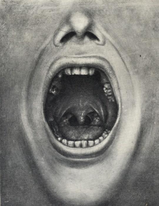 Иллюстрация ротовой полости пациента доктора Генри Коттона с удаленными зубами, 1921 год. | Фото: en.wikipedia.org.