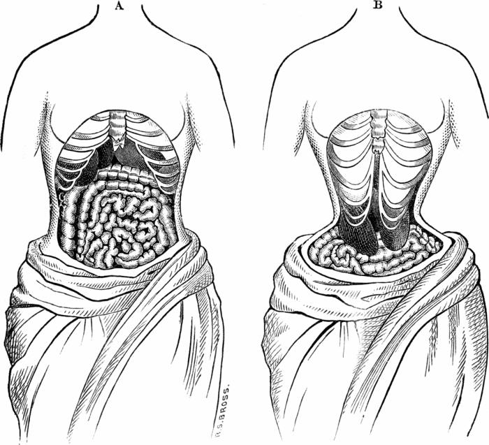 Иллюстрацией того, как викторианские врачи представляли себе последствия ношения корсетов. | Фото: commons.wikimedia.org.