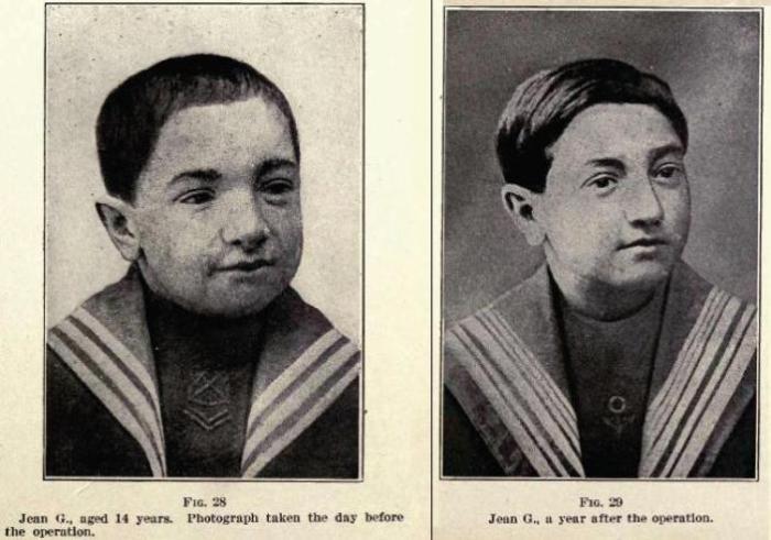 14-летний мальчик до и после того, как ему пересадили щитовидную железу шимпанзе. Фото: en.wikipedia.org.
