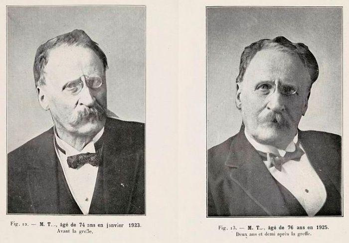 Сравнение фотографий человека до и после «омоложения» Воронова. Фото: commons.wikimedia.org.