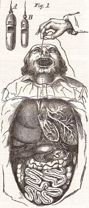 Ловушка доктора Мейерса для ловли паразитов. Патент 1854 года. | Фото: cabinetmagazine.org