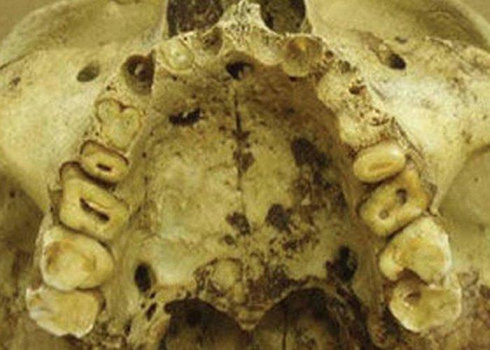 Серьезные проблемы с зубами.