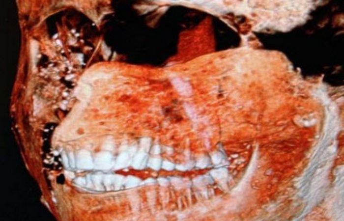 У жителей Помпей были здоровые зубы.