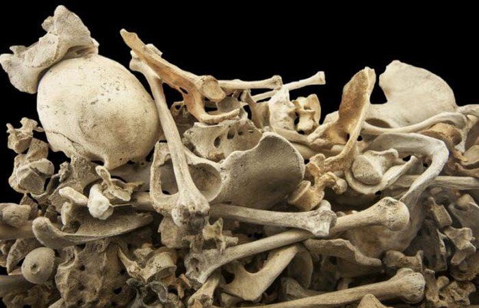 Торговля человеческими скелетами: качество скелетов.