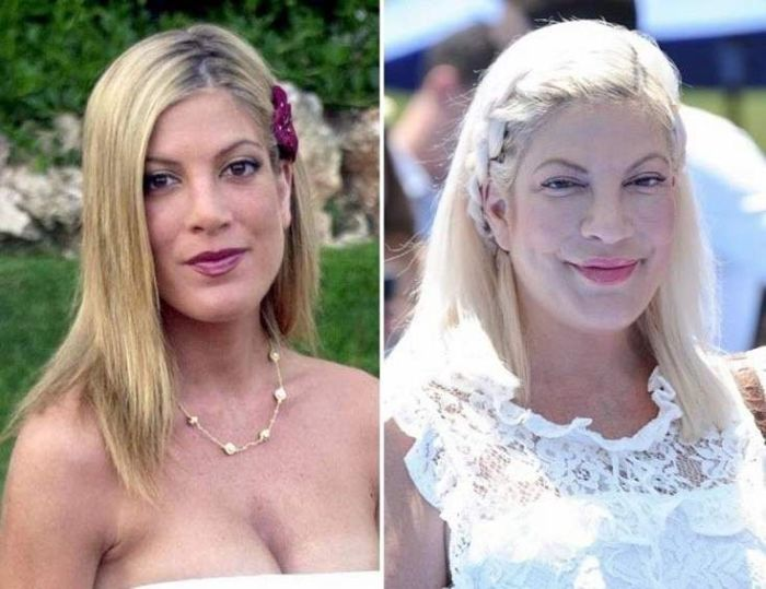 Тори Спеллинг до и после операций. / Фото: www.ronin.ru
