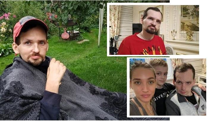 Алексей Янин после инсульта. | Фото: 5-tv.ru.