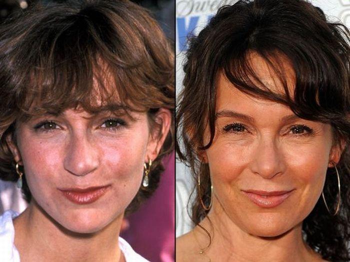 Дженнифер Грей до и после операции