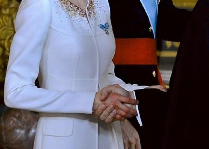 Вот так выглядела правая рука новой Королевы Испании Летиции после трёх тысяч рукопожатий во время приёма гостей во дворце после провозглашения ее супруга королем Испании.