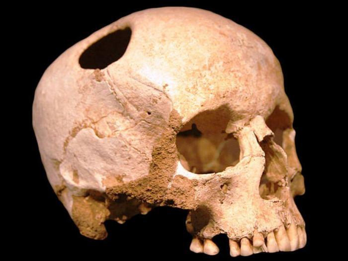 Трепанированный череп древнего человека.