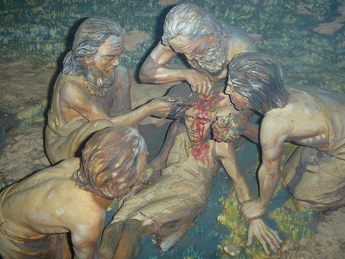 Древние эскулапы проводят операцию.